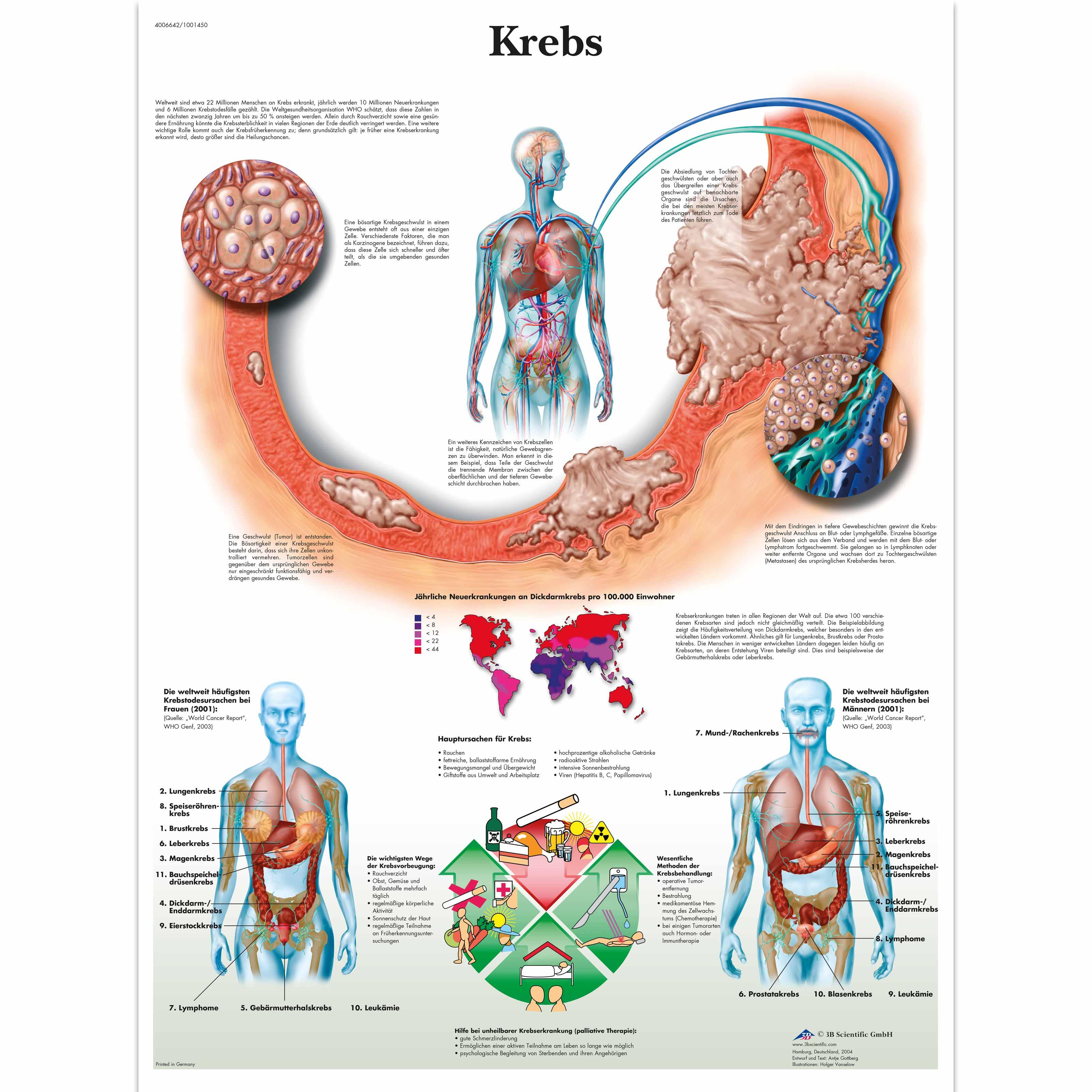 Krebs - 4006642 - VR0753UU - Cancers - 3B Scientific