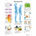 Osteoporosis Chart, 1001472 [VR1121L], Arthritis and Osteoporosis Education