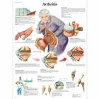 Arthritis Chart, 1001474 [VR1123L], Arthritis and Osteoporosis Education