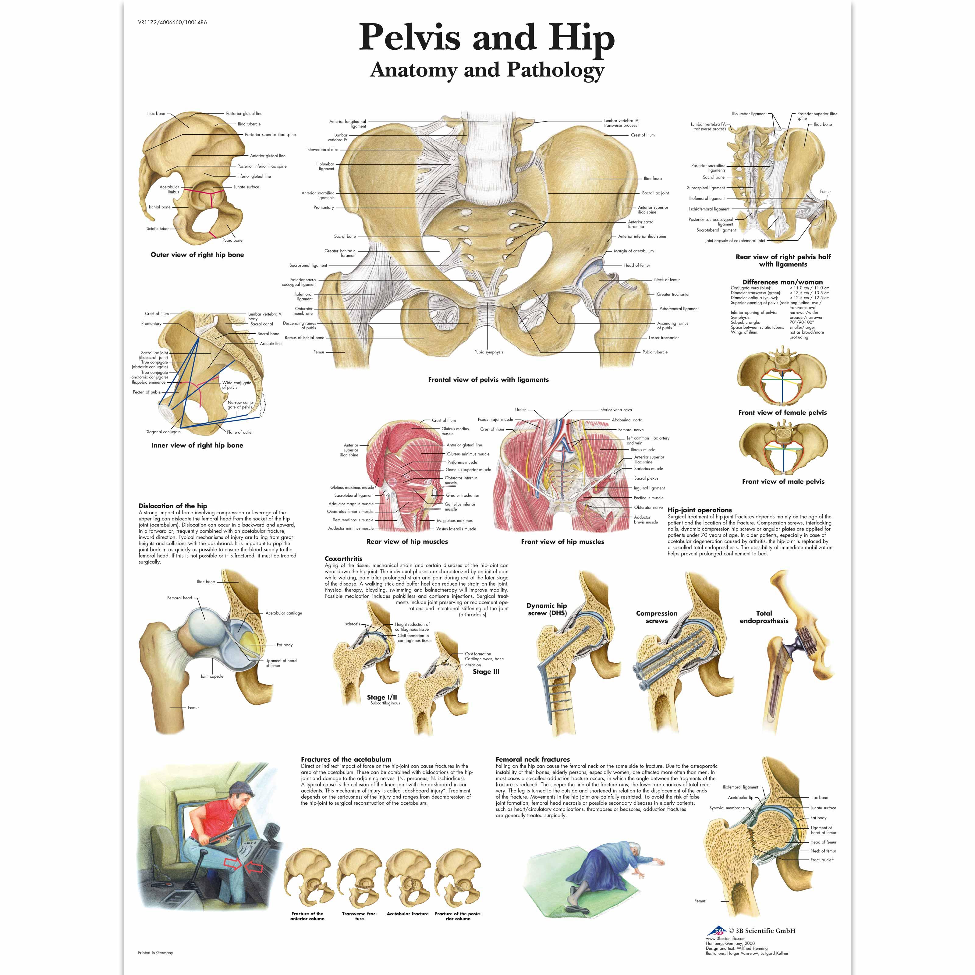 Pelvis And Hip Chart Anatomy And Pathology 1001486 Vr1172l
