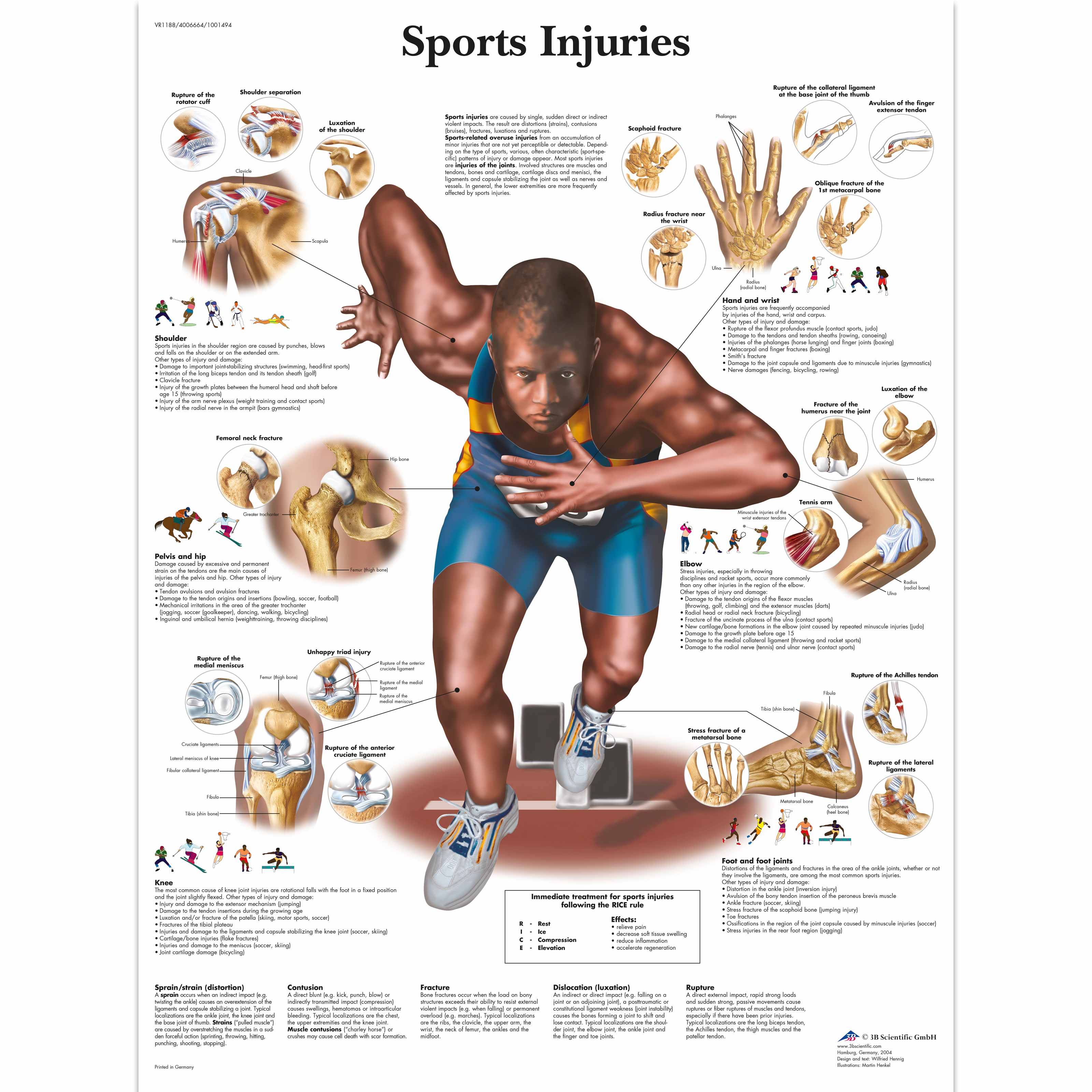 sports injuries chart - vr1188uu - muscle - 3b scientific, Cephalic Vein