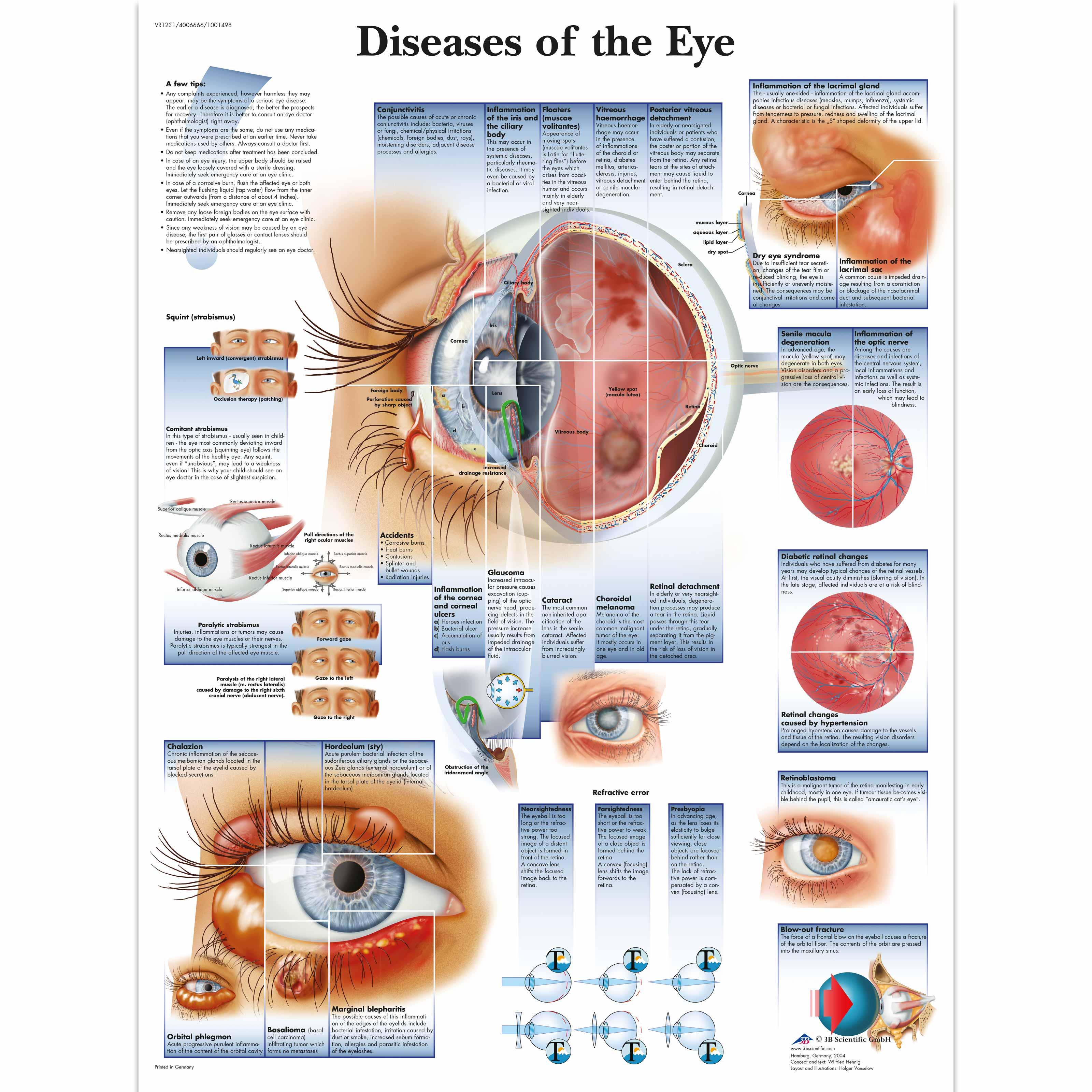 Eye Anatomy Charts Peopledavidjoel