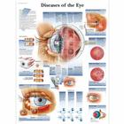 Diseases of the Eye Chart, 4006666 [VR1231UU], Ophthalmology