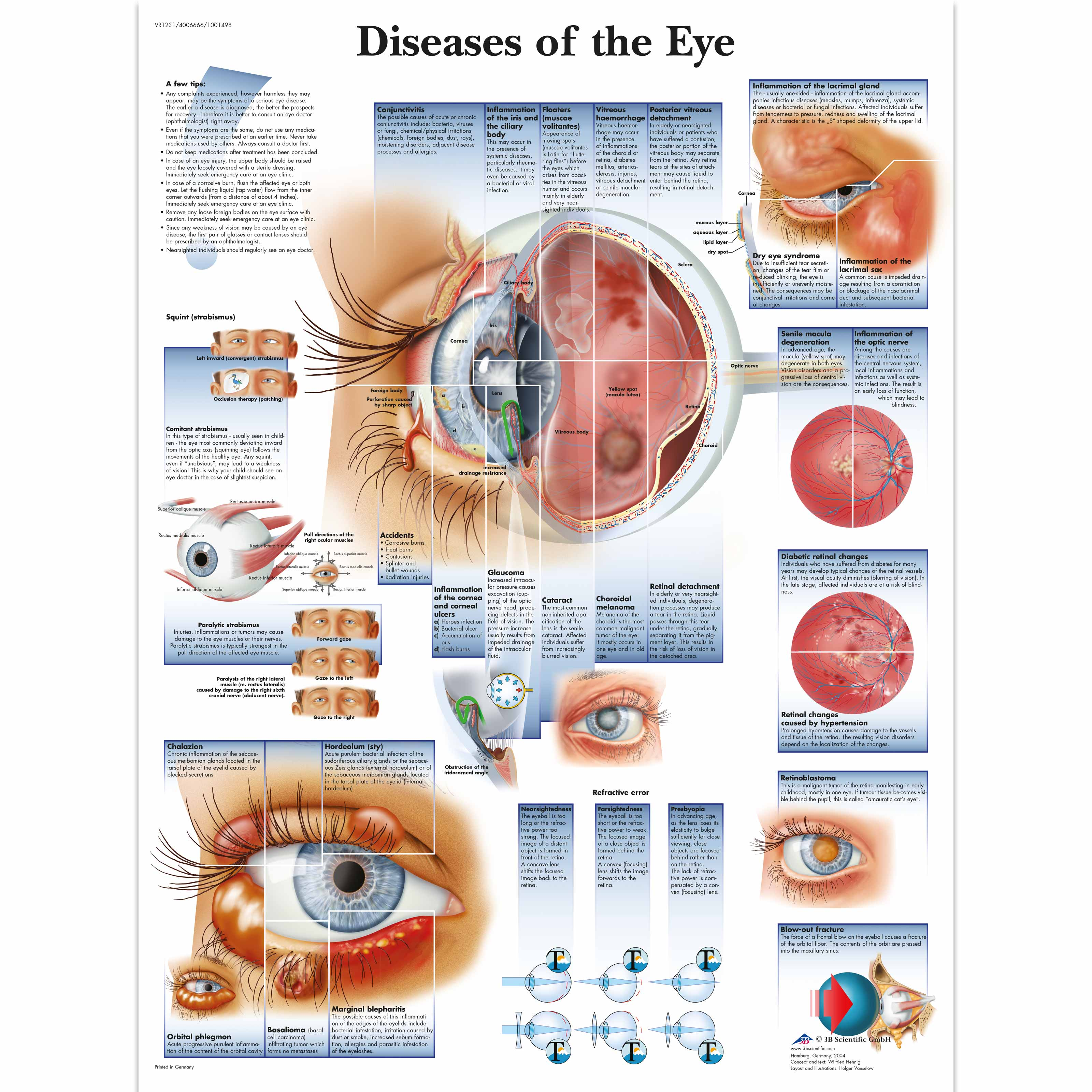 Diseases of the eye chart 4006666 vr1231uu ophthalmology 3b diseases of the eye chart nvjuhfo Image collections