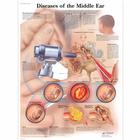 Diseases of the Middle Ear Chart, 1001506 [VR1252L], Ear, Nose and Throat (ENT)