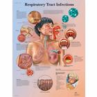 Respiratory Tract Infections Chart, 1001508 [VR1253L], Respiratory System