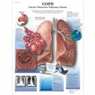 COPD Chart - Chronic Obstructive Pulmonary Disease, 1001522 [VR1329L], Respiratory System