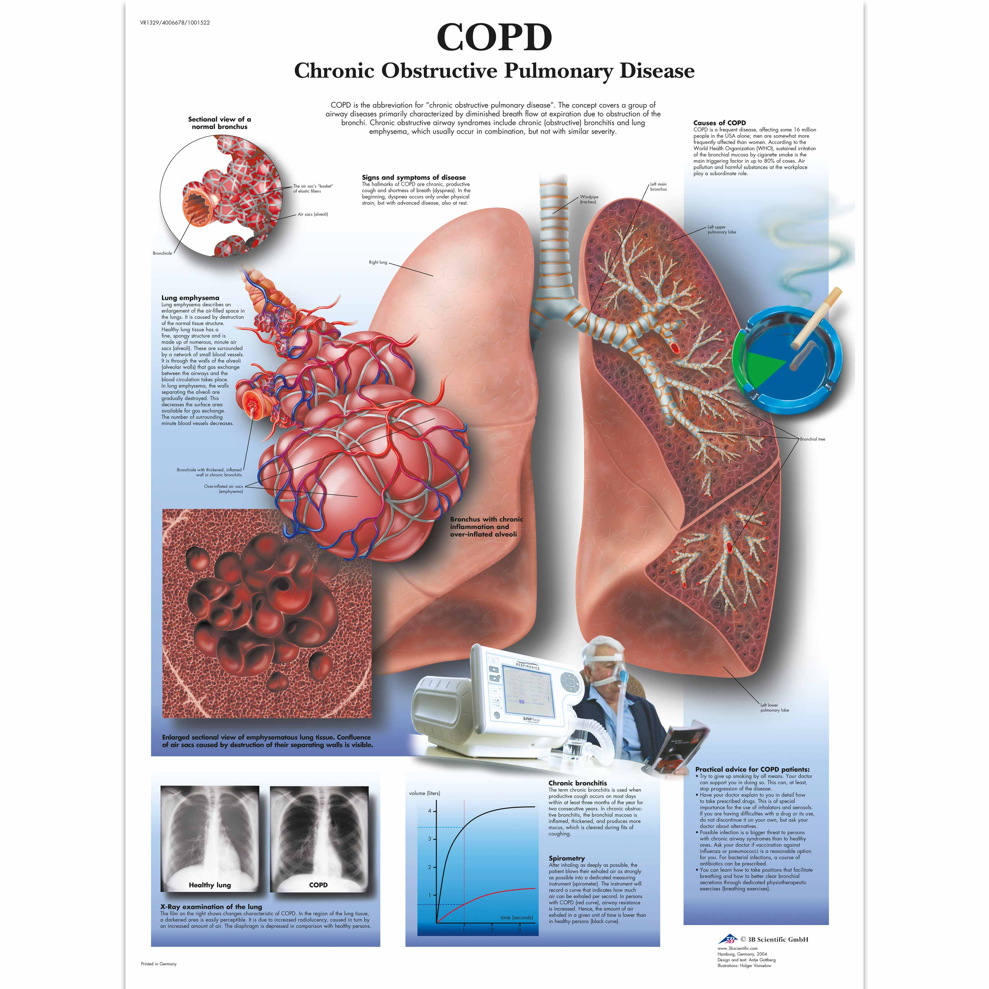 chronic obstructive pulmonary disease and support Go back to patient education resources learn about chronic obstructive pulmonary disease (copd) order our living well with copd guide here copd is a condition where it is difficult to breathe and completely empty air from the lungs.