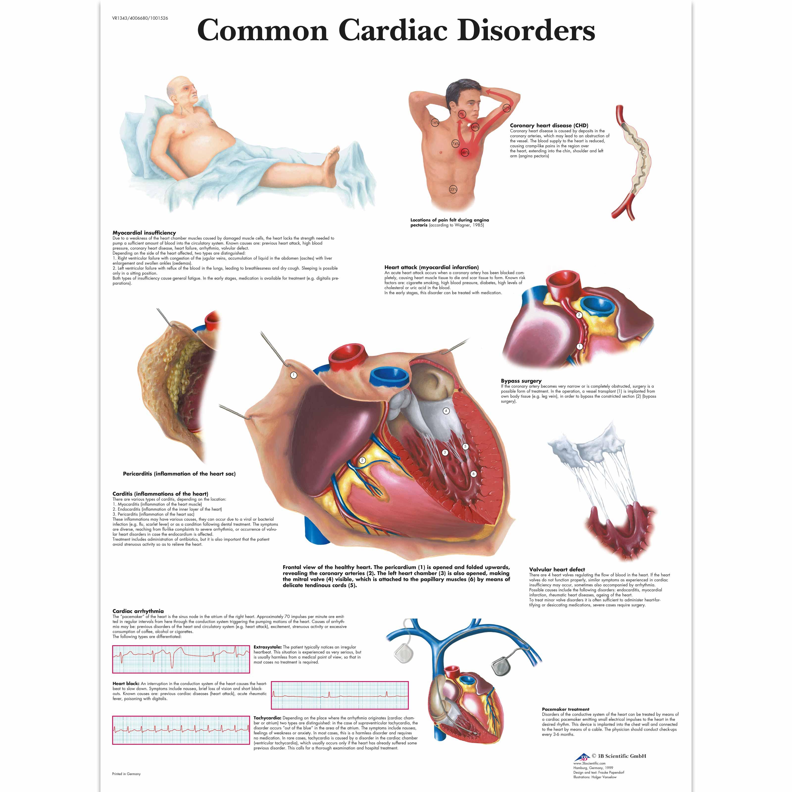 Common Cardiac Disorders Chart - 1001526 - VR1343L - Cardiovascular ...