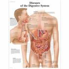 Diseases of the Digestive System Chart, 1001548 [VR1431L], Digestive System