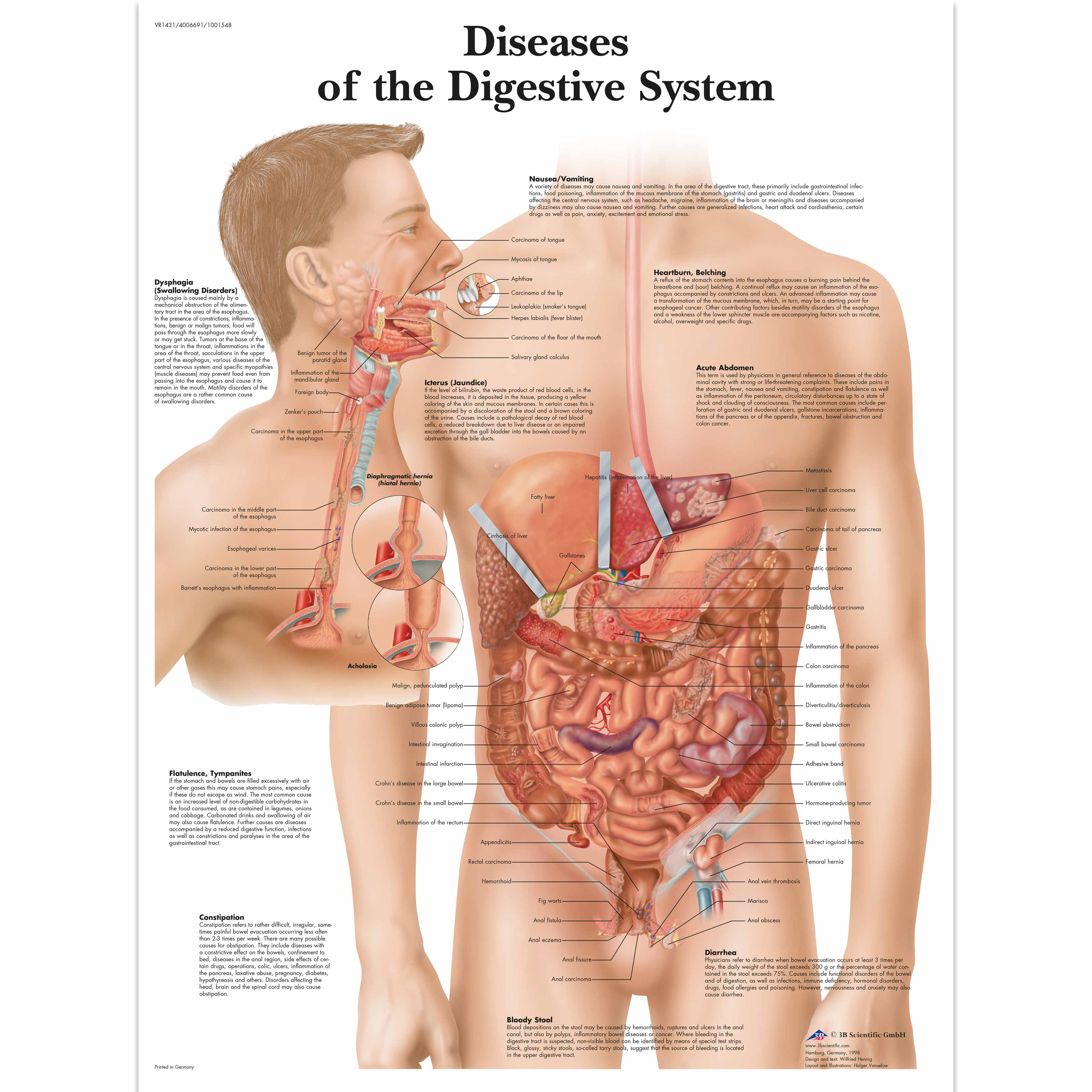 Anatomical charts and posters anatomy charts diseases of the