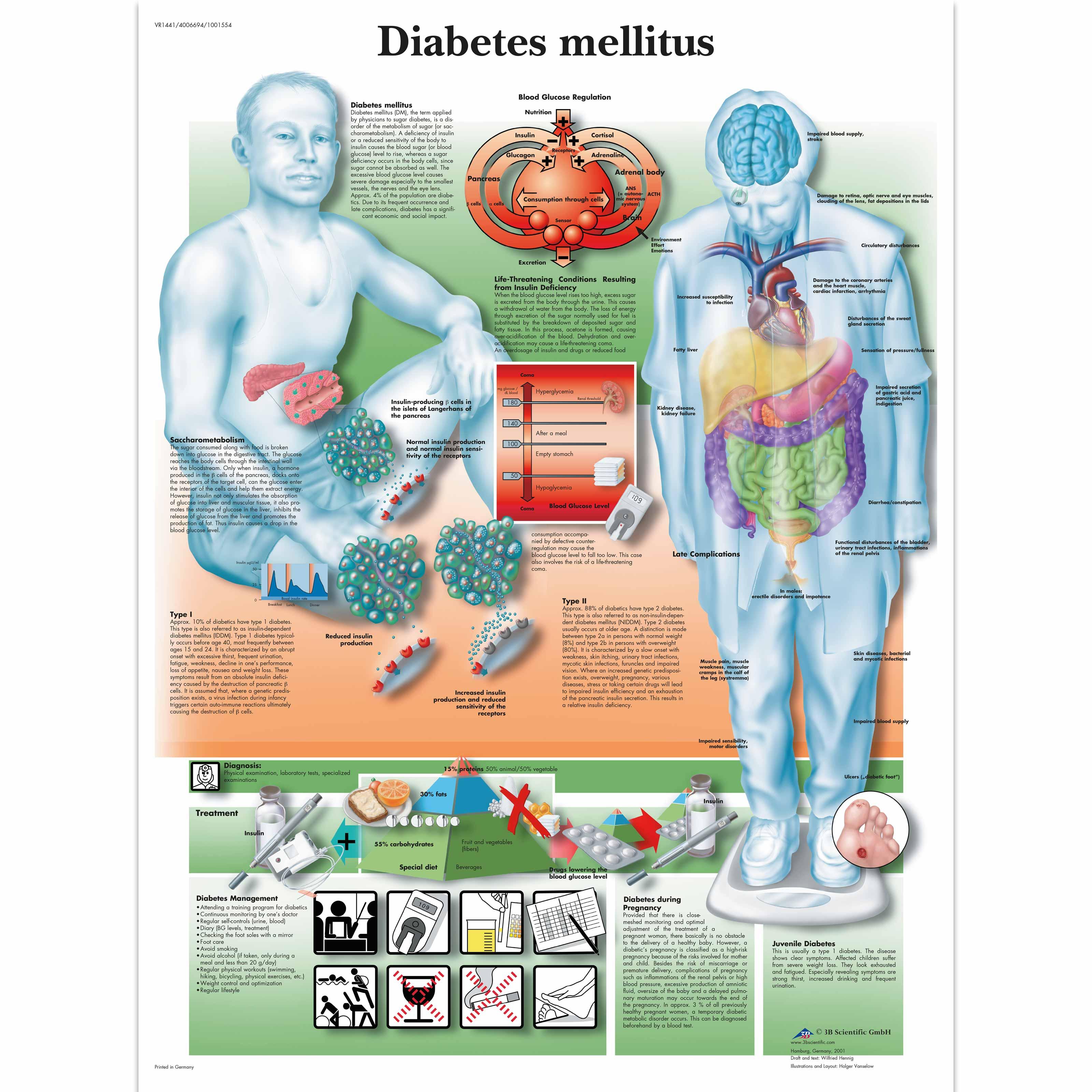 Diabetes Chart - Diabetes Poster - Anatomical Charts - Anatomy ...