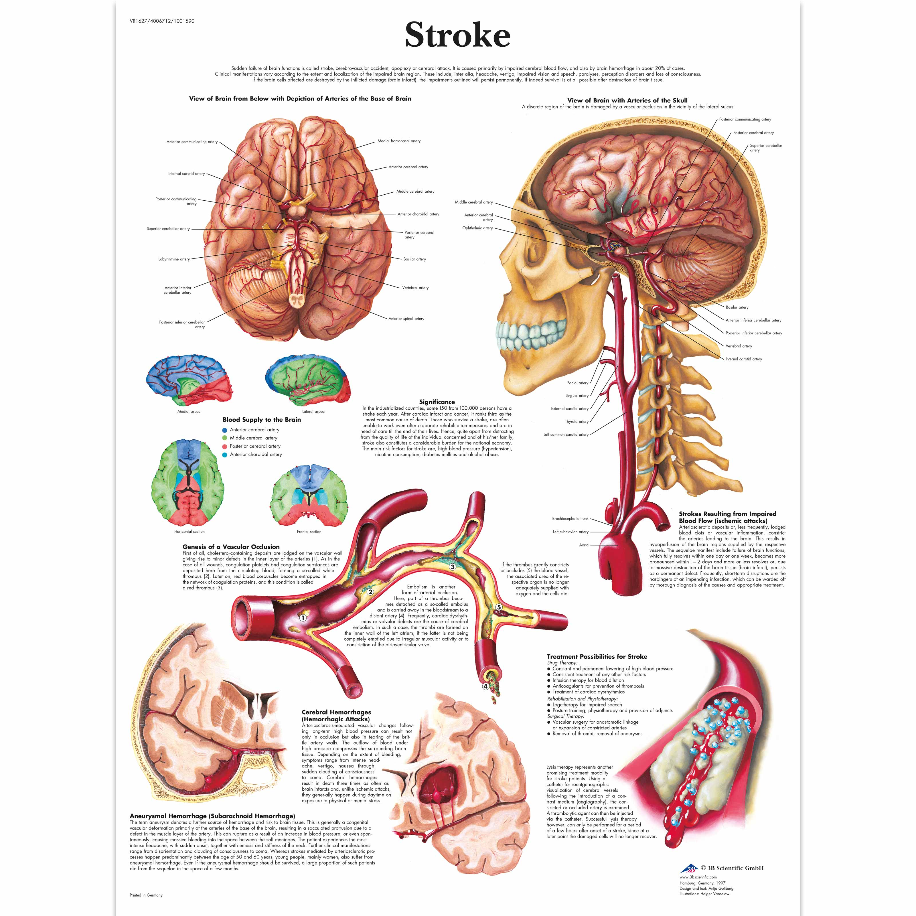 Anatomical Charts - Neurological Posters - Pathology Posters ...