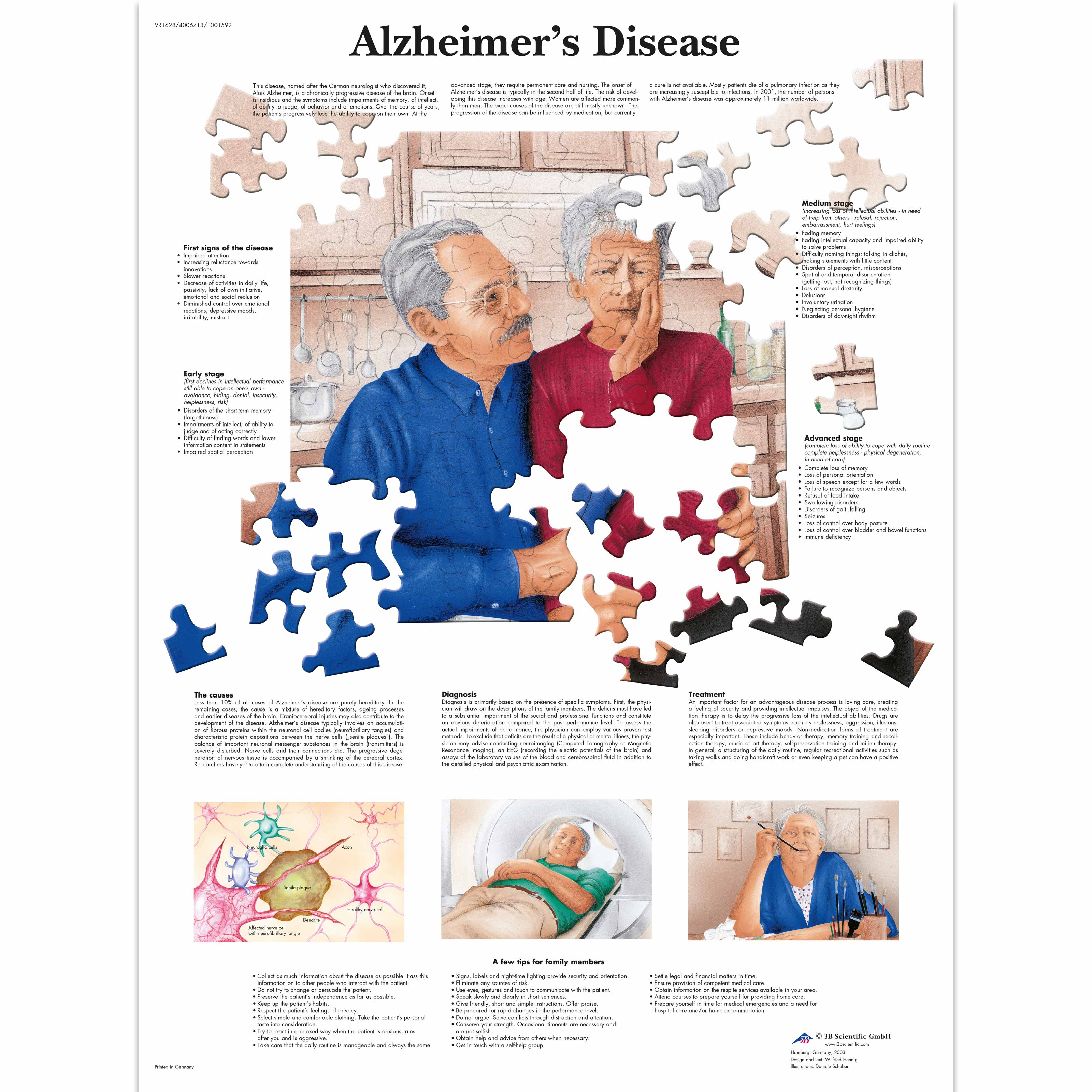 a clinical description of the causes and treatment of alzheimers disease Causes of dementia alzheimer disease  //wwwnianihgov/alzheimers/clinical-trials  cholinesterase inhibitors in the treatment of dementia clinical features.