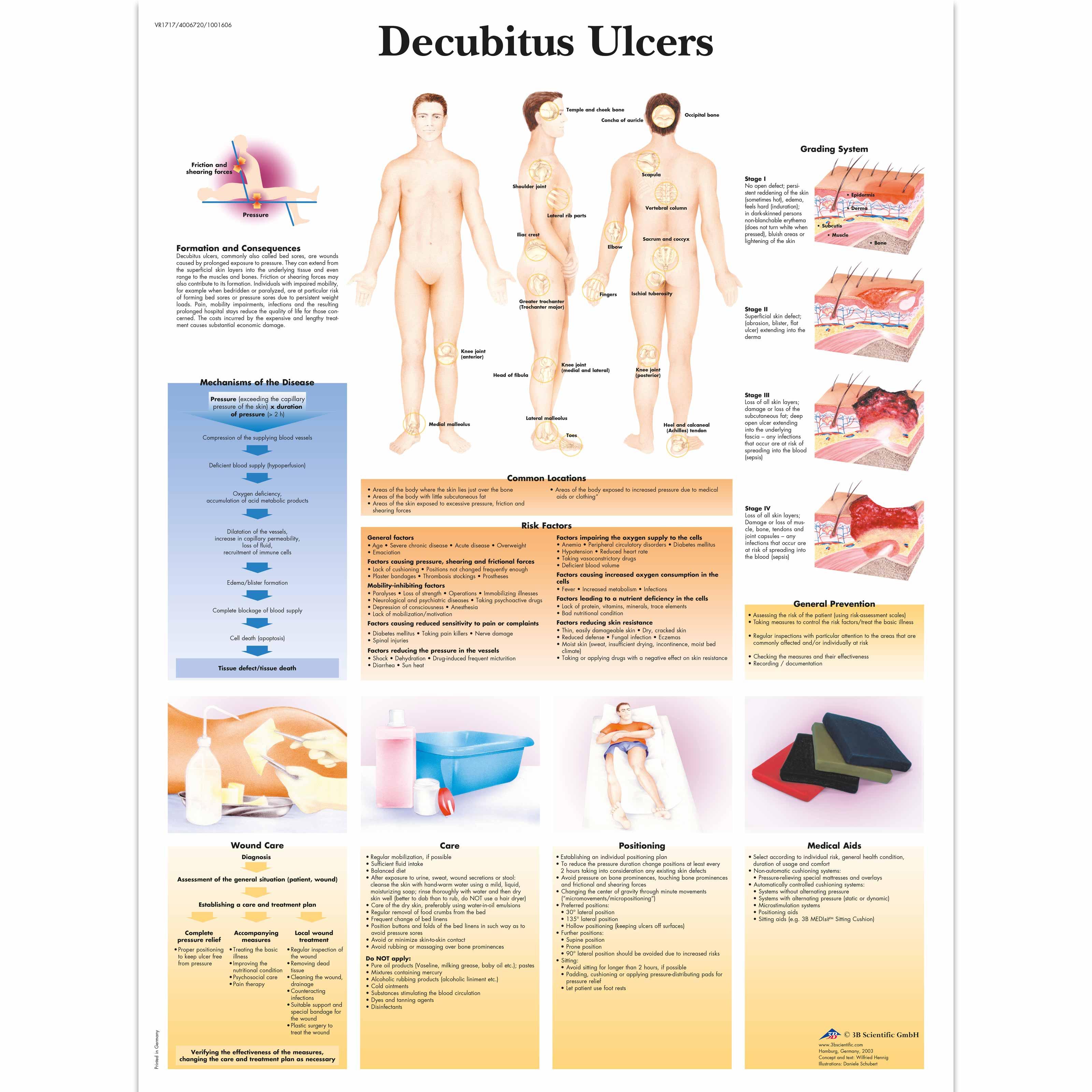 information about decubitis ulcers