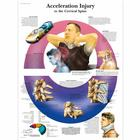 Acceleration Injury to the Cervical Spine Chart, 4006724 [VR1761UU], Skeletal System