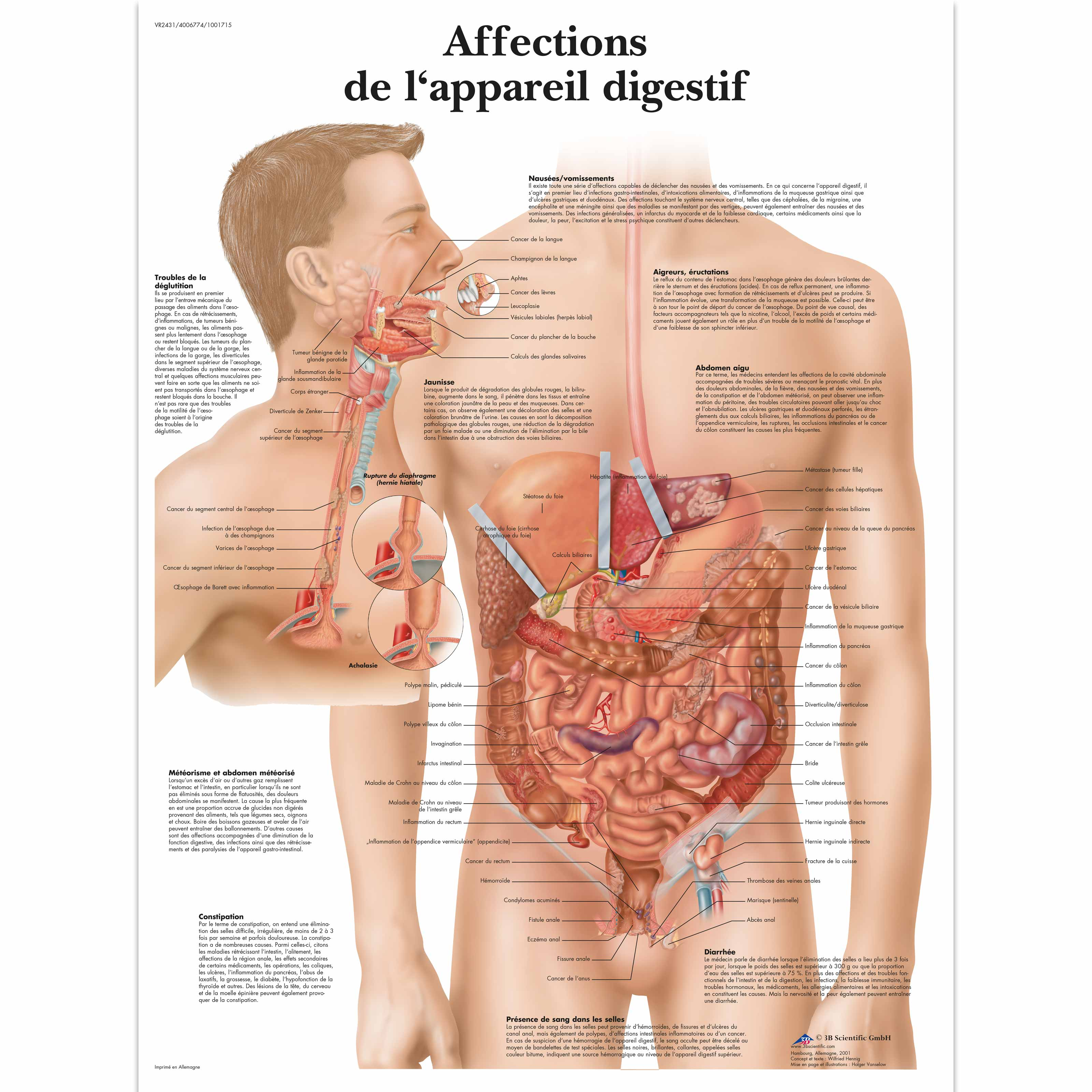 Affections de L\'appareil digestif - 1001715 - VR2431L - Digestive ...