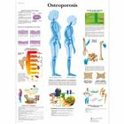 Osteoporosis, 4006816 [VR3121UU], Arthritis and Osteoporosis Education