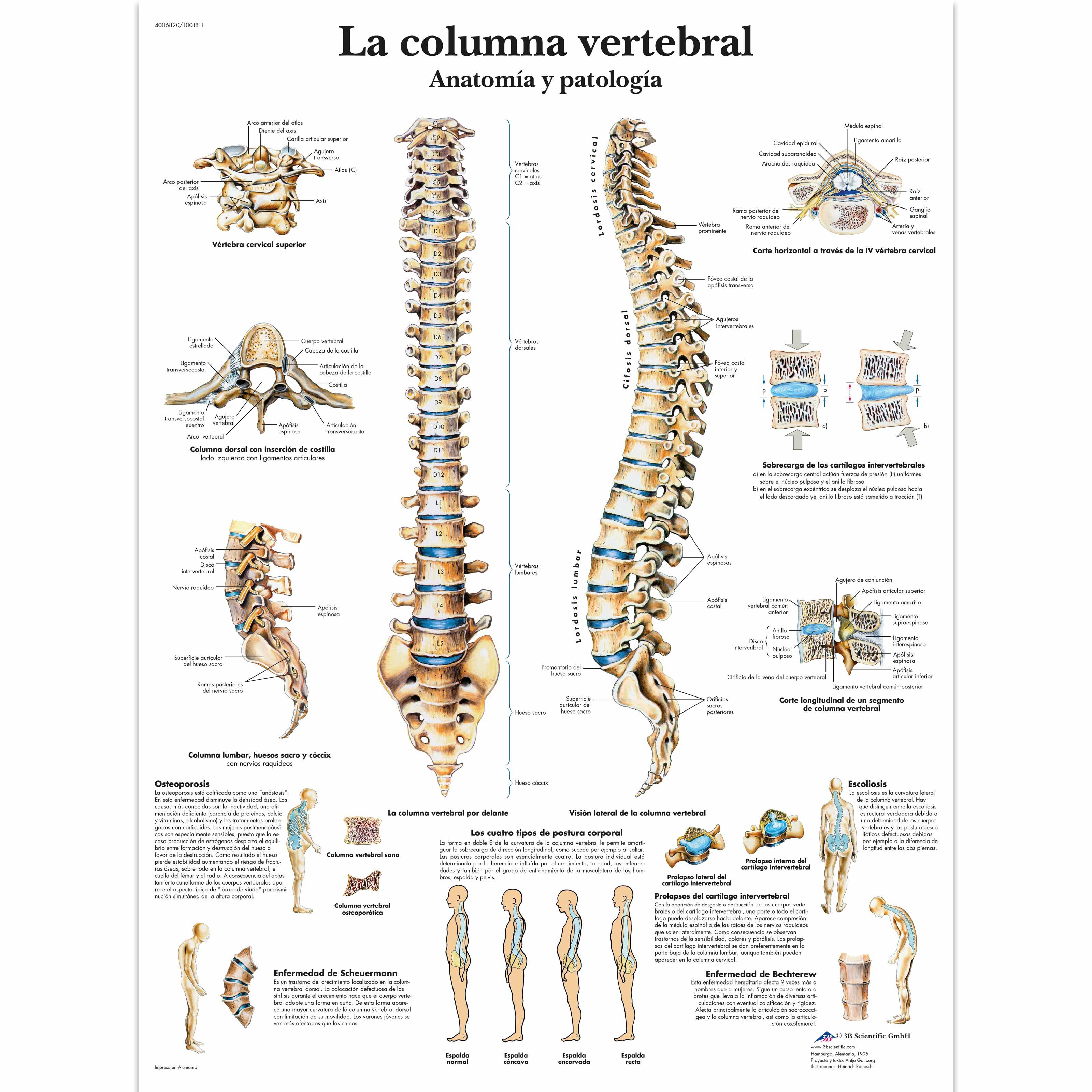 Encantador La Anatomía De La Columna Lumbar Elaboración - Anatomía ...