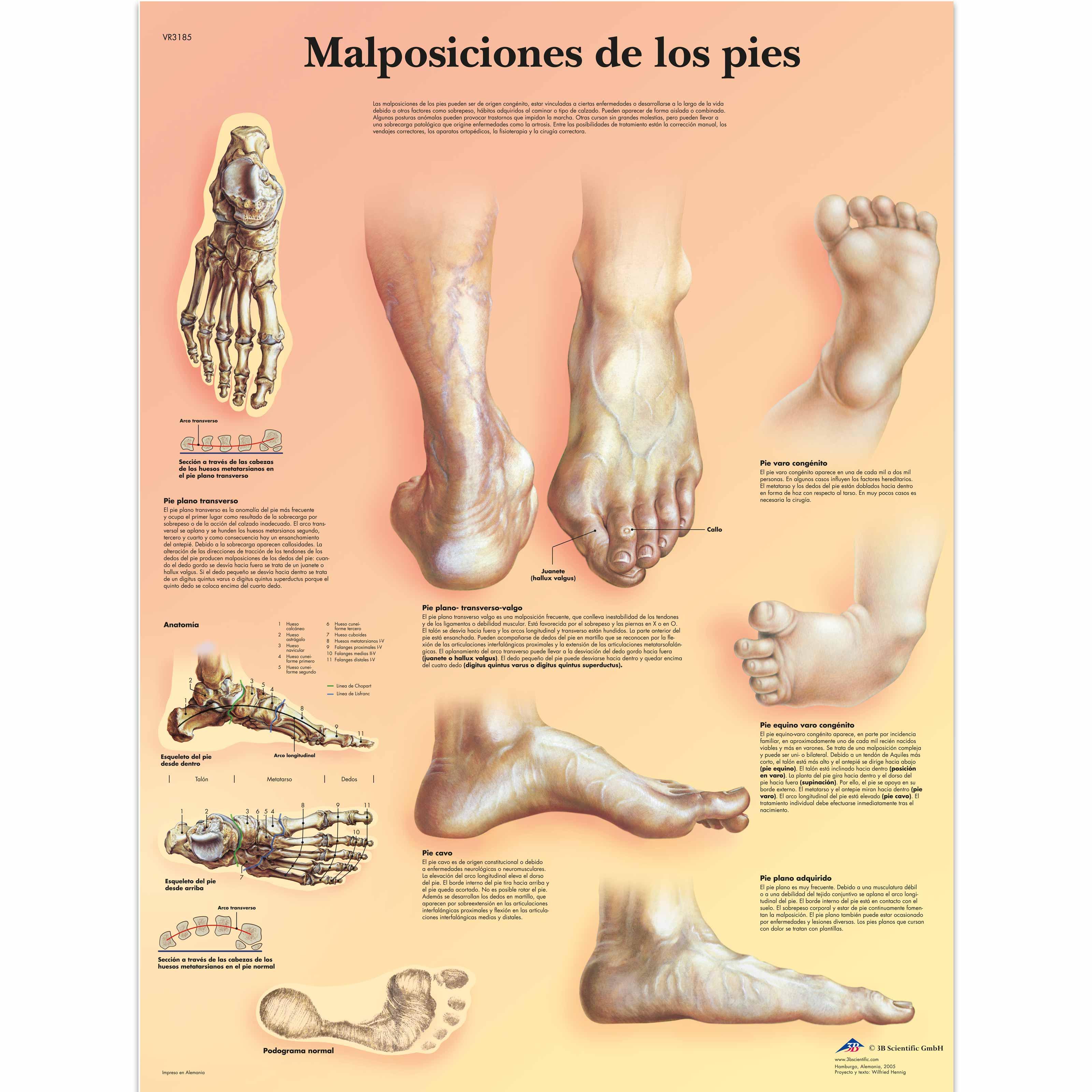 Malposiciones de los pies - 4006826 - VR3185UU - Skeletal System ...