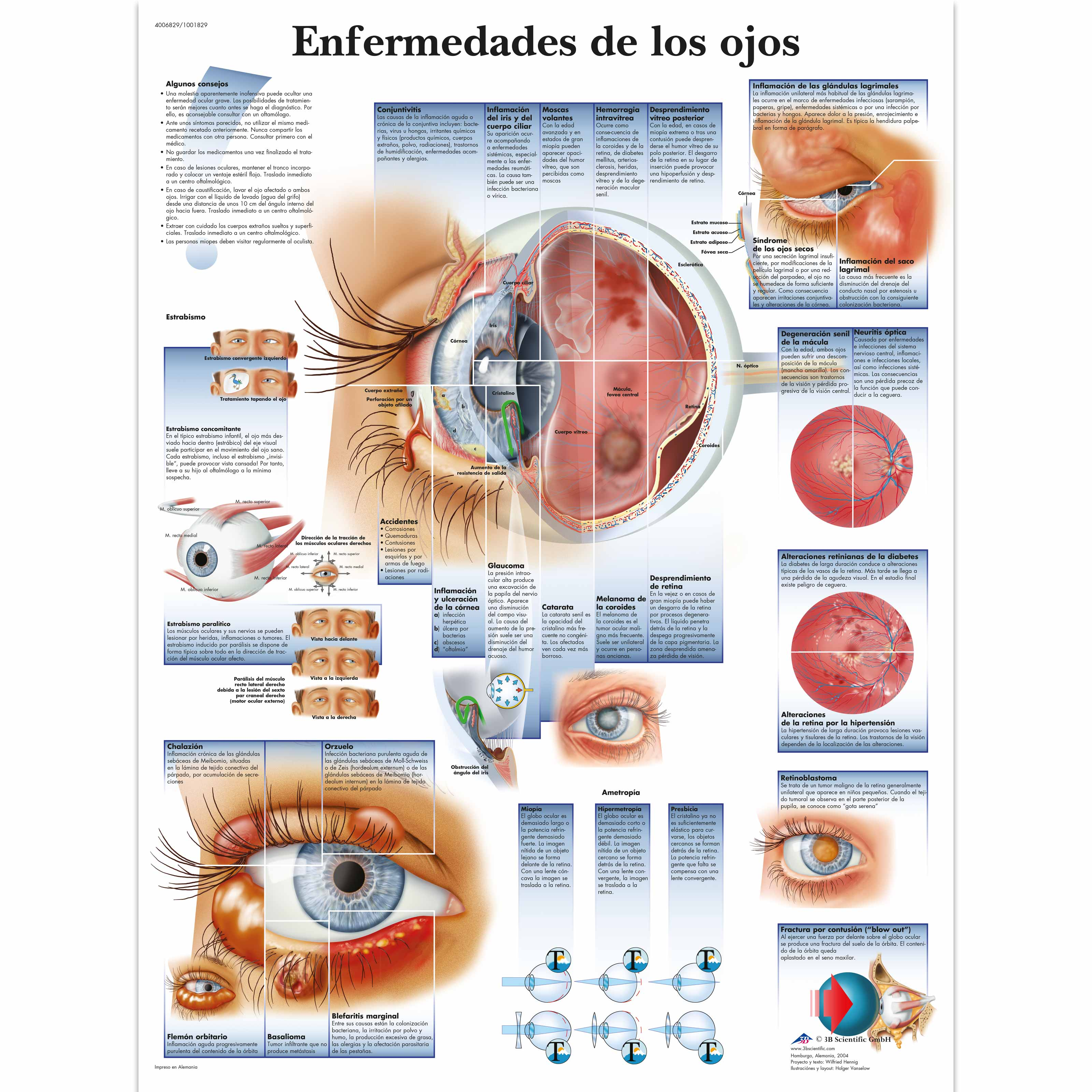 Enfermedades de los ojos - VR3231L - Ophthalmology - 3B Scientific: https://www.3bscientific.com/enfermedades-de-los-ojos,p_1382_3000.html