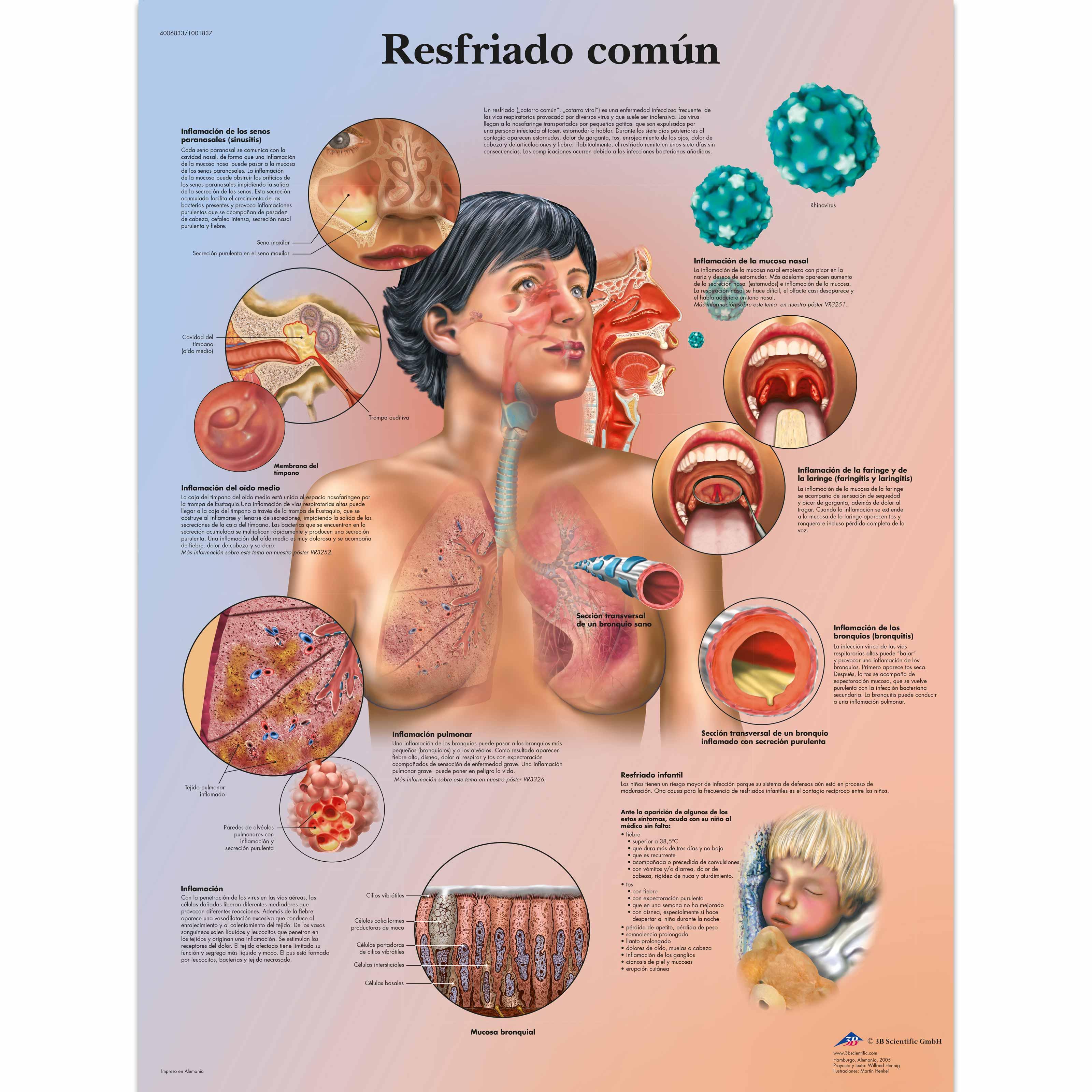 Resfriado común - 4006833 - VR3253UU - Respiratory System - 3B ...