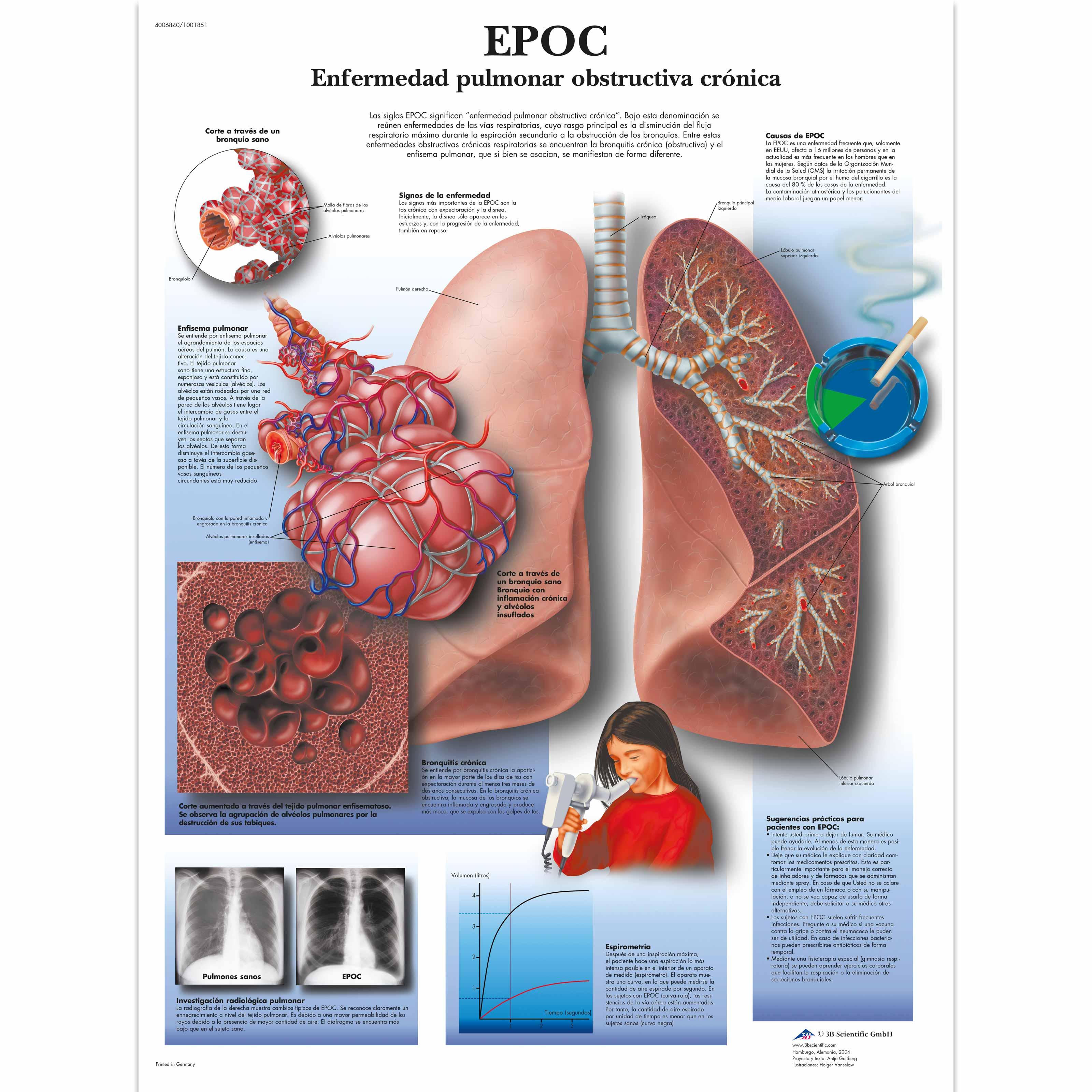 EPOC Enfermedad pulmonar obstructiva crónica - 4006840 - 3B ...