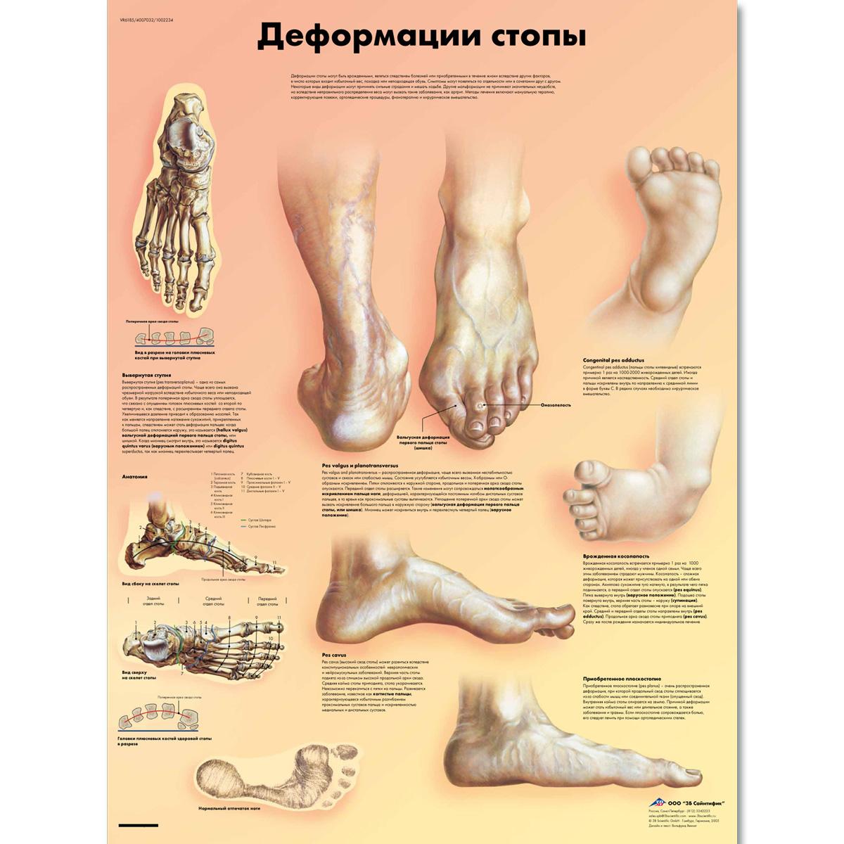 Deformities of the Feet Chart - 1002234 - VR6185L - ZVR6185L ...