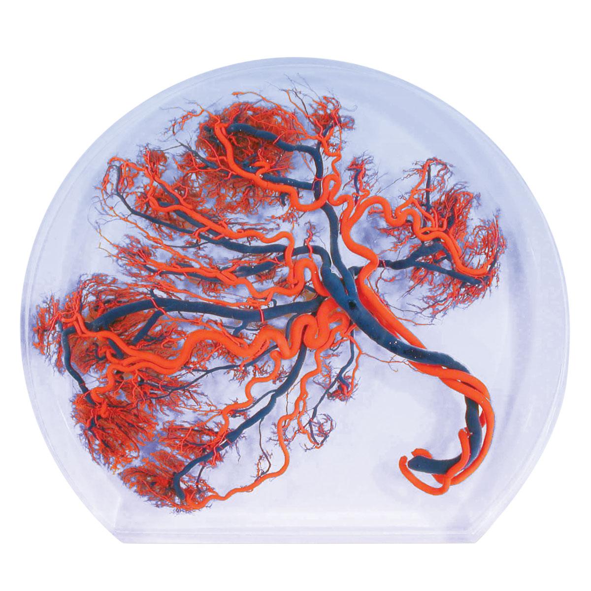 Placenta - 1003645 - W10604 - MENSCHL. PLAZENTA - Anatomical Models ...