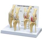 Canine Osteoarthritis Knee Model, Normal + 3 Conditions, 1019577 [W33373], Osteology