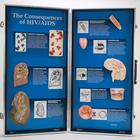 The Consequences of HIV/AIDS - 3D Display, 1018281 [W43090], Gynecology